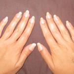 отбеливание ногтей до и после