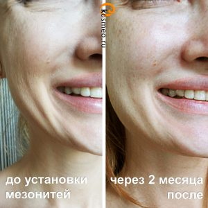 мезонити до и после