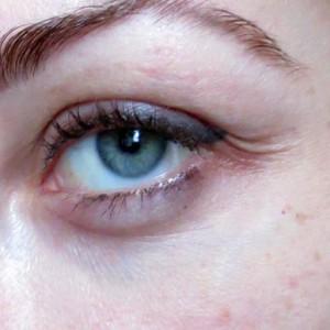 морщинки в уголках глаз