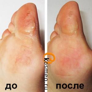 педикюрные носочки до и после