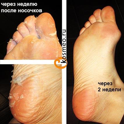 Отшелушивающая маска-носочки для ног vilenta с фруктовыми (aha.