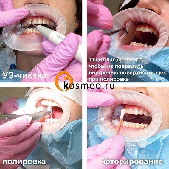 пройти процедуру анастезия при чистки зубного камня работы