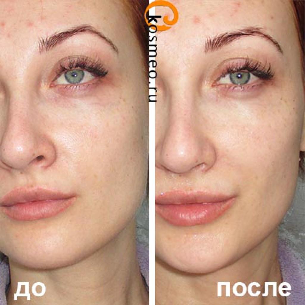Гликолевый пилинг отзывы до и после фото