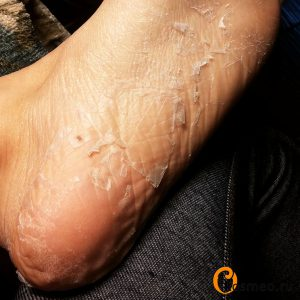педикюрные носочки али отзыв