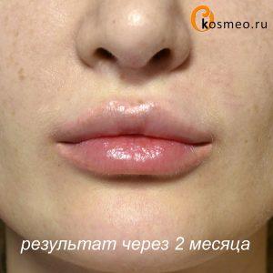 домашние уколы в губы