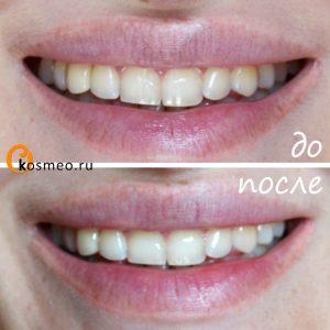 домашнее отбеливание зубов до и после
