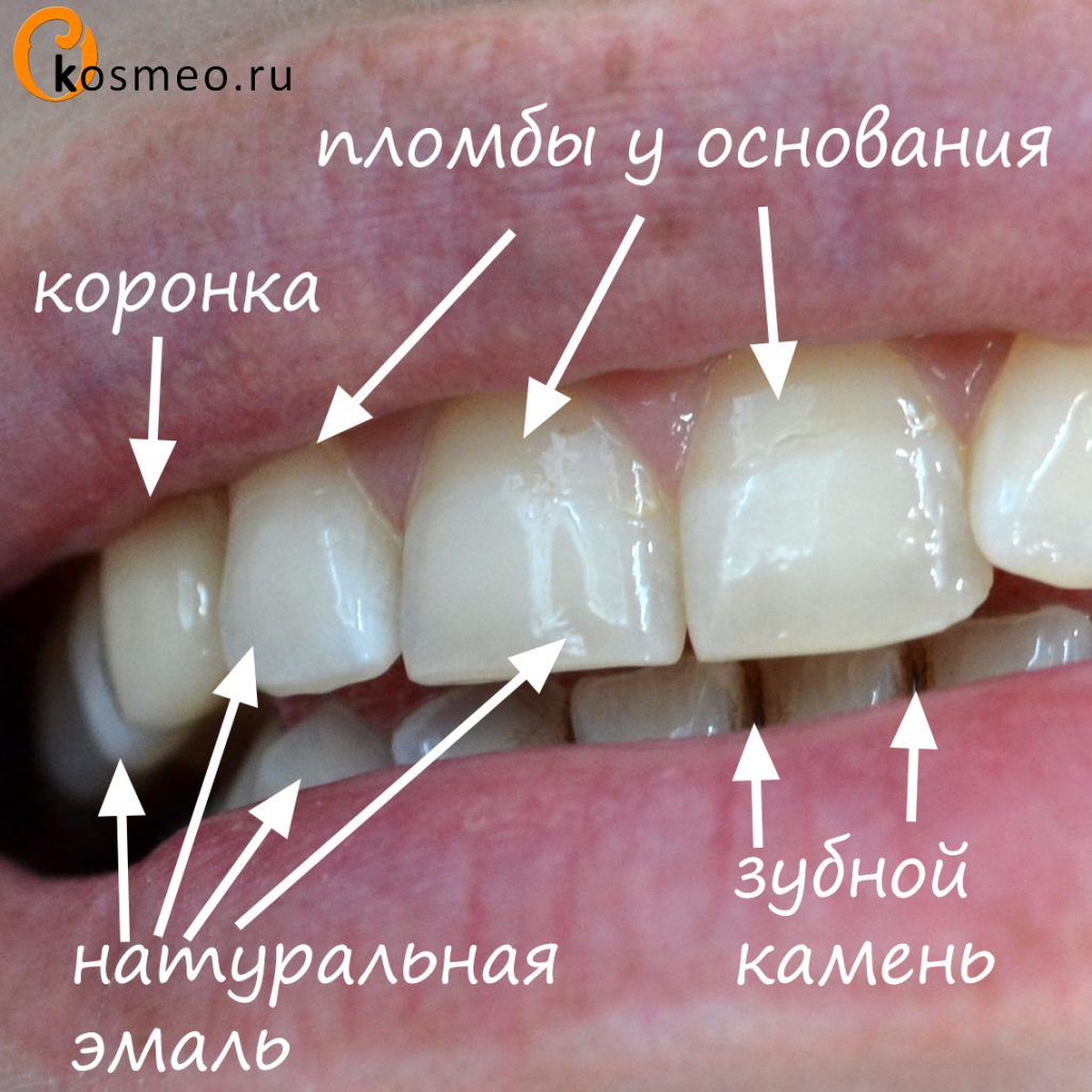 косметическое отбеливание зубов эффект